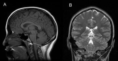 Sagittal and coronal MRI images of Chiari type I m