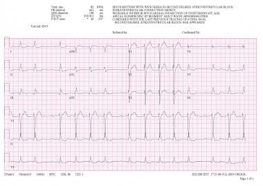 Electrocardiogram of patient with Mobitz I (Wencke