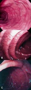 Endoscopic views of unsuspected celiac disease. A: