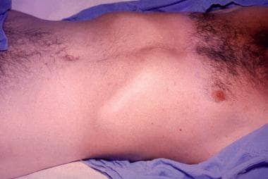 Rose spots on abdomen of a patient with typhoid fe