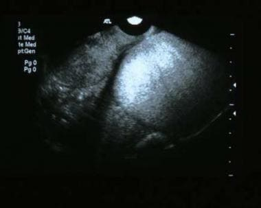 Endovaginal sonogram shows a striking echogenic ma