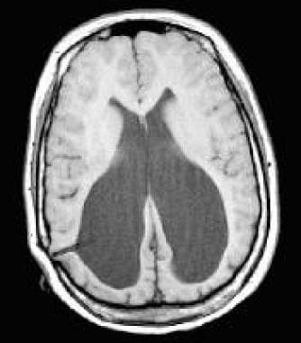 Axial, T1-weighted MRI scan of a 15-year-old girl