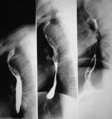 Barium esophagogram of 30-year-old woman with vasc