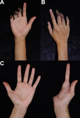 Ischemic contractures secondary to a right hand ar