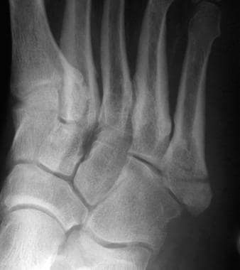 Foot Fracture Treatment & Management: Emergency Department
