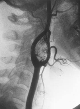 Angiogram of carotid body tumor. These are found b