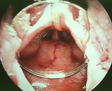 A mirror is placed in the oral cavity and orophary