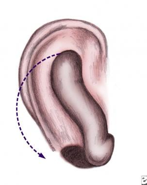 Second stage consists of forming earlobe (otherwis