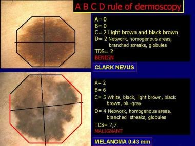 Application of ABCD rule of dermoscopy in melanocy