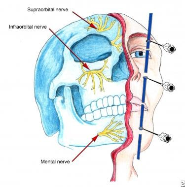 Distal trigeminal block technique. See text for de
