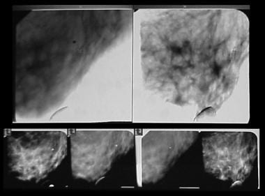 Stereotactic images obtained during a prone-table