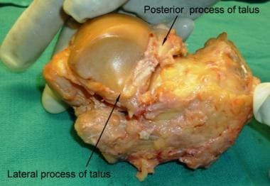 Lateral view of talus and calcaneal bones.