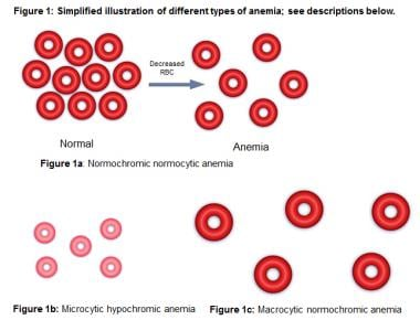 Simplified illustration of different types of anem