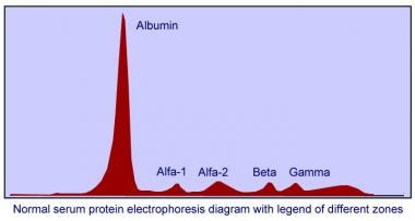 Normal serum protein electrophoresis diagram with