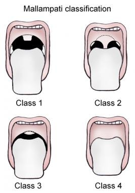 Mallampati classification.