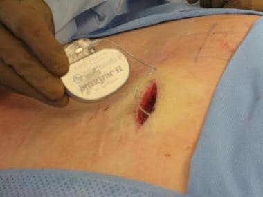 IPG being placed in subcutaneous pocket right butt
