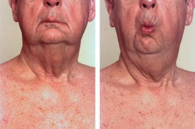 Photographs show asymmetry at rest due to facial w