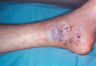 Split skin grafting of wound.