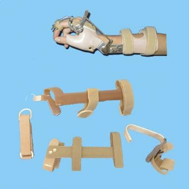 Assist devices used in upper limb paralysis.