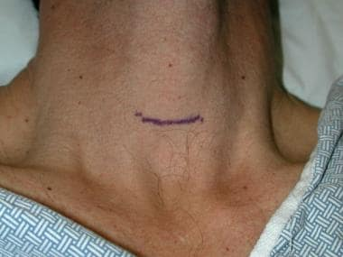 Incision location.