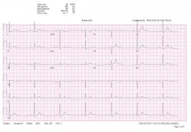 Electrocardiogram of patient with Mobitz II second
