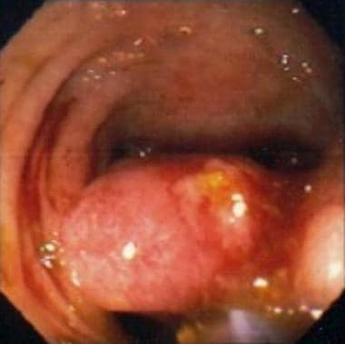 Polypectomy with a snare around a sessile polyp ba