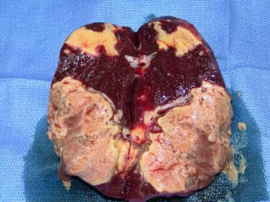 Resected spleen (same as in above image) with absc