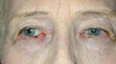 Basal cell carcinoma of the right lower lid.