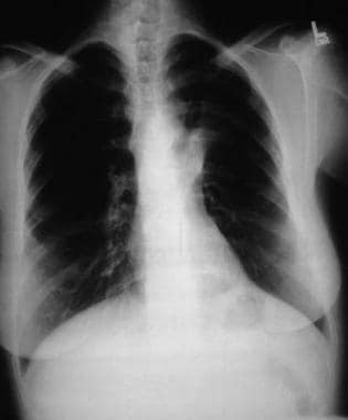 Posteroanterior chest radiograph of a 37-year-old