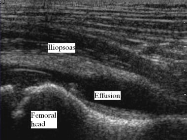 Transient synovitis. Ultrasound image of the left