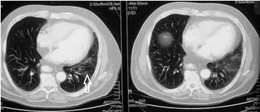 A case of micro-aspiration (2 of 3 images). CT of