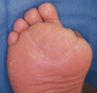 Reconstructive surgery of diabetic foot after infe