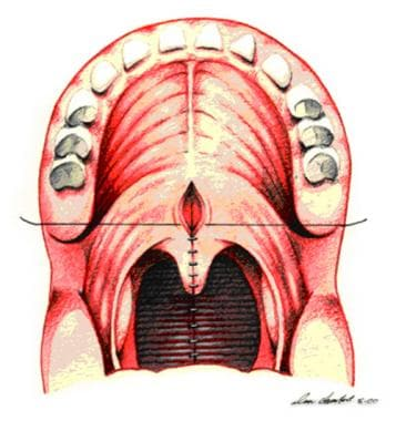 Oral side of soft palate is sealed to conceal phar