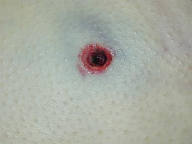 Entrance gunshot wound with a thin, evenly distrib