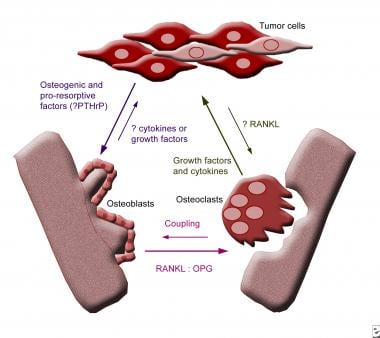 Mechanisms and mediators of metastasis to bone.