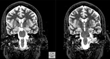 T2-weighted magnetic resonance images reveal the i