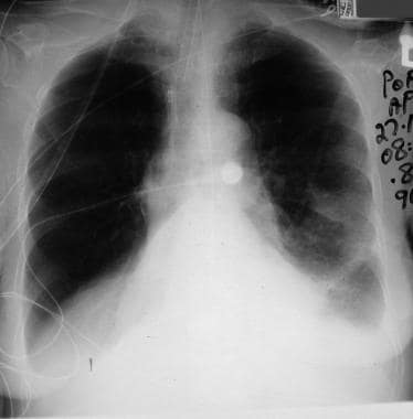 Lateral chest radiograph demonstrating a right low