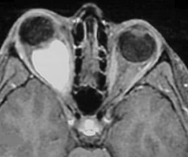 Axial postgadolinium T1-weighted MRI with fat satu