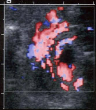 Color Doppler ultrasonographic scan shows malrotat