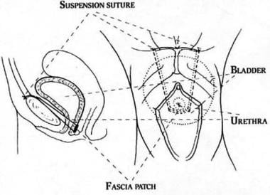 Rectus fascia or fascia lata suburethral (patch) s