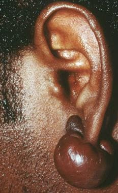 Keloid. Courtesy of Dirk M. Elston, MD.