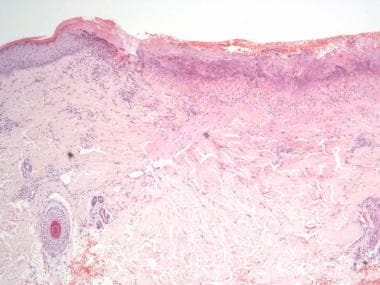 Cup-shaped invagination of the epidermis associate