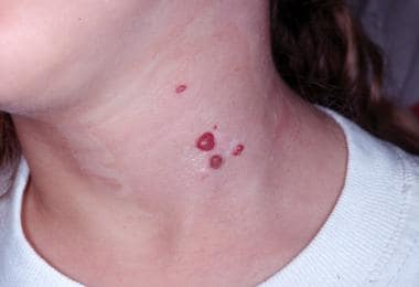 Multiple recurrent pyogenic granulomas on the neck