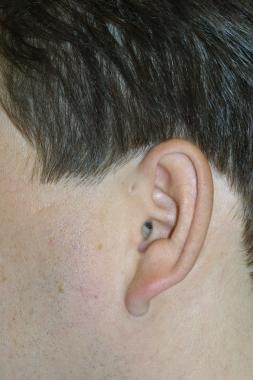 Small dell adjacent to the ear demonstrates the pr
