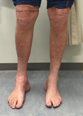 Patient with cavovarus deformity in both feet. Hee