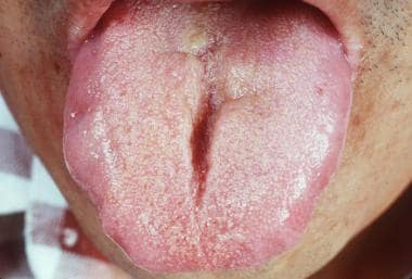 Note the scalloping of the borders of the tongue,