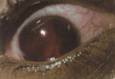Total or 8-ball hyphema.