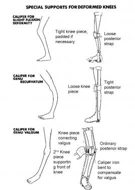 Orthotic treatment for deformities around knee in