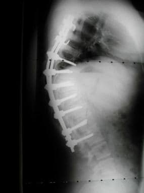 Postoperative lateral demonstrating a 2-rod levera