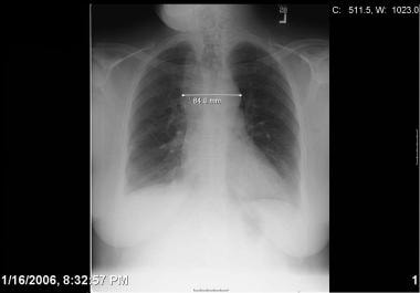 Chest radiograph of a patient presenting with medi
